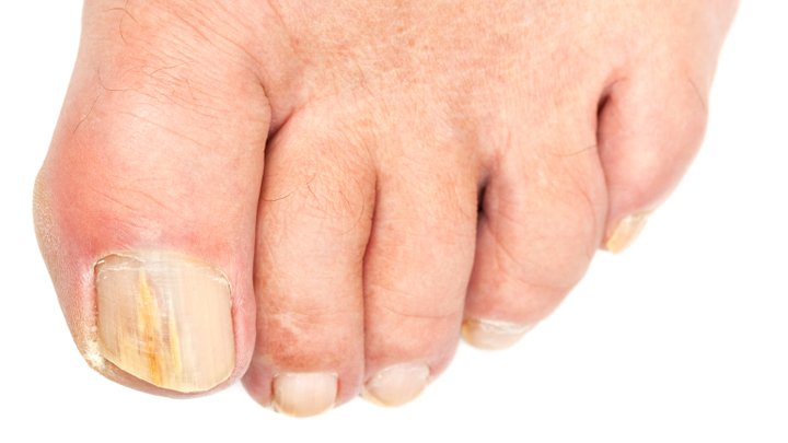 10 top tips for ageing toenails - Starts at 60