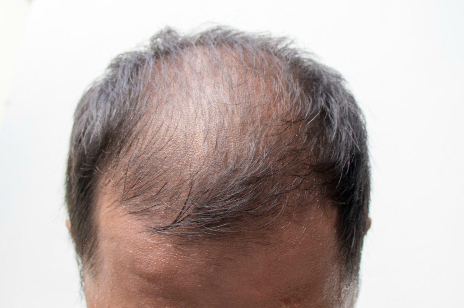 An elderly man with pattern baldness.