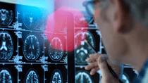 Drugs giant Biogen confirmed a major breakthrough for Alzheimer's sufferers. Source: Getty.