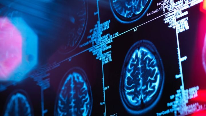The number of dementia cases worldwide is set to triple within 30 years. Source: Getty.